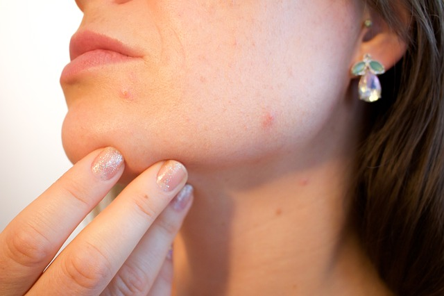 Do Acne Scar Removal Creams Work